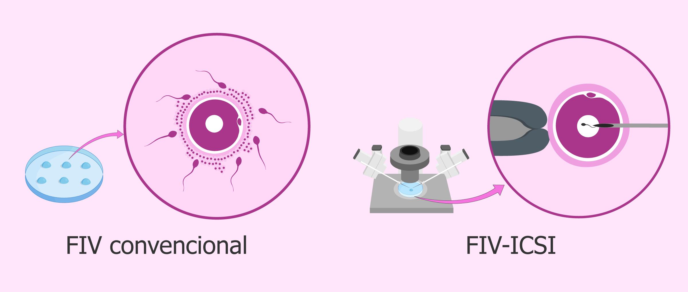 terapias de reproducción asistida : FIV vs ICSI