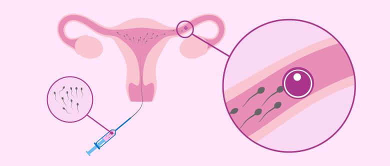 Terapias de reproducción asistida: Inseminacion intrauterina
